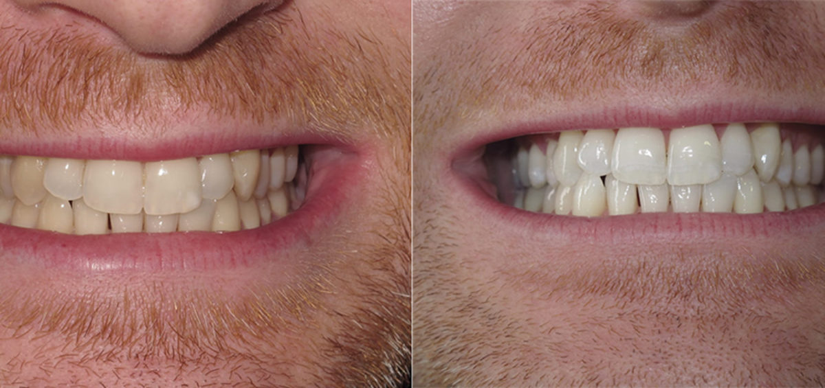 Teeth whitening Dublin before and after